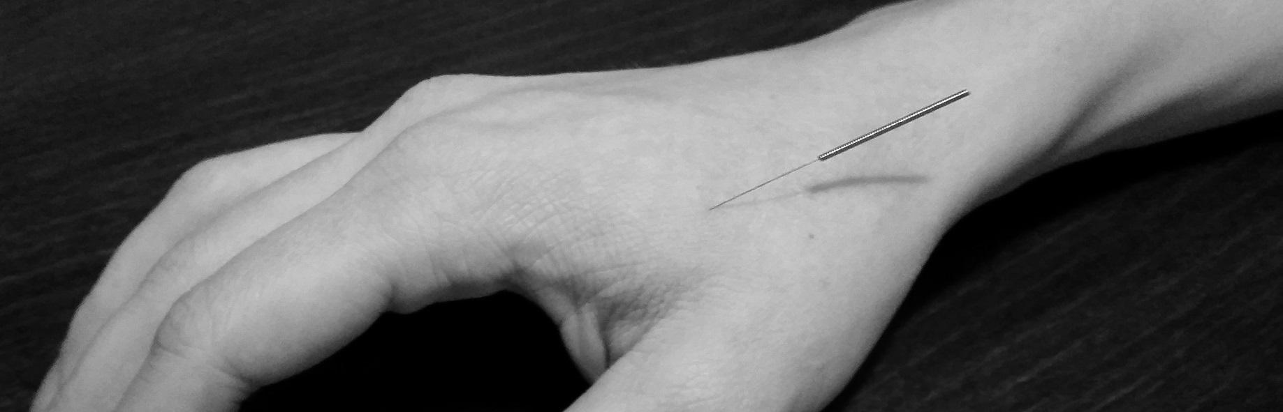 Akupunktur på nørrebro